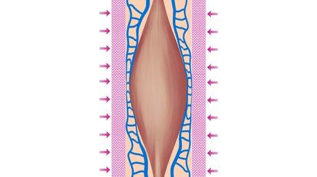 Bild 12 Kompressionsdruck angespannter Muskel