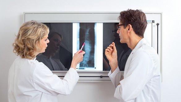 Roentgenbild Analyse bei Osteoporose