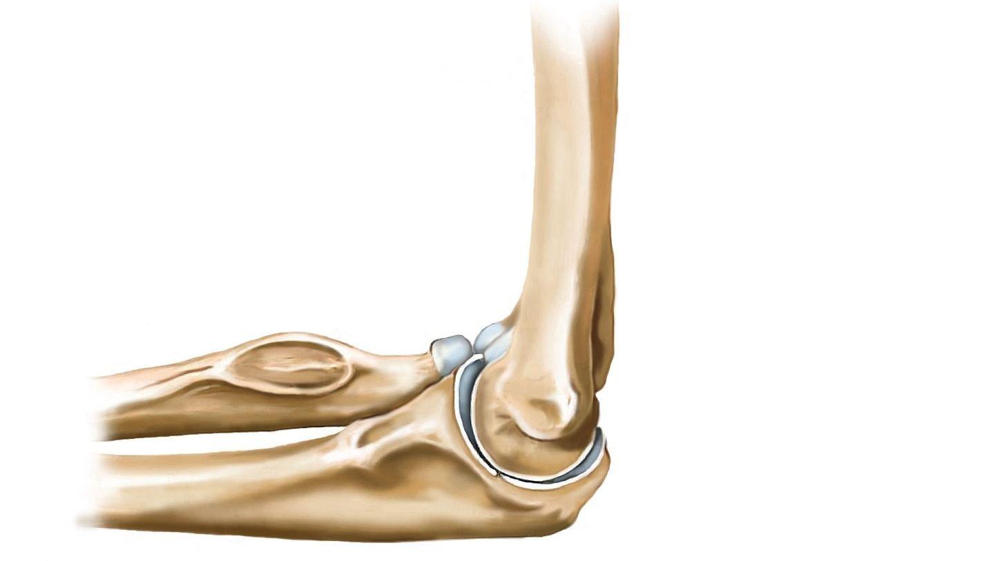 Was hilft bei Ellenbogen-Instabilität?